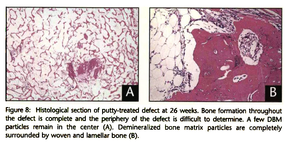 Figure 8: Histological section of putty-treated defect at 26 weeks. Bone formation throughout the defect is complete and the periphery of the defect is difficult to determine. A few DBM particles remain in the center (A). Demineralized bone matrix particles are completely surrounded by woven and lamellar bone (B).