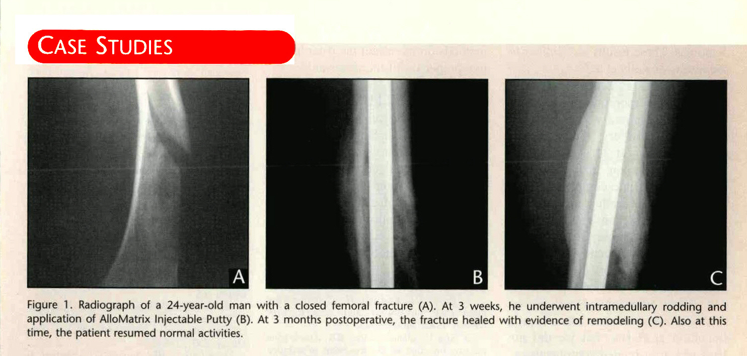 CASE STUDIESFigure 1. Radiograph of a 24-year-old man with a closed femoral fracture (A). At 3 weeks, he underwent intramedullary rodding and application of AlloMatrix Injectable Putty (B). At 3 months postoperative, the fracture healed with evidence of remodeling (C). Also at this time, the patient resumed normal activities.