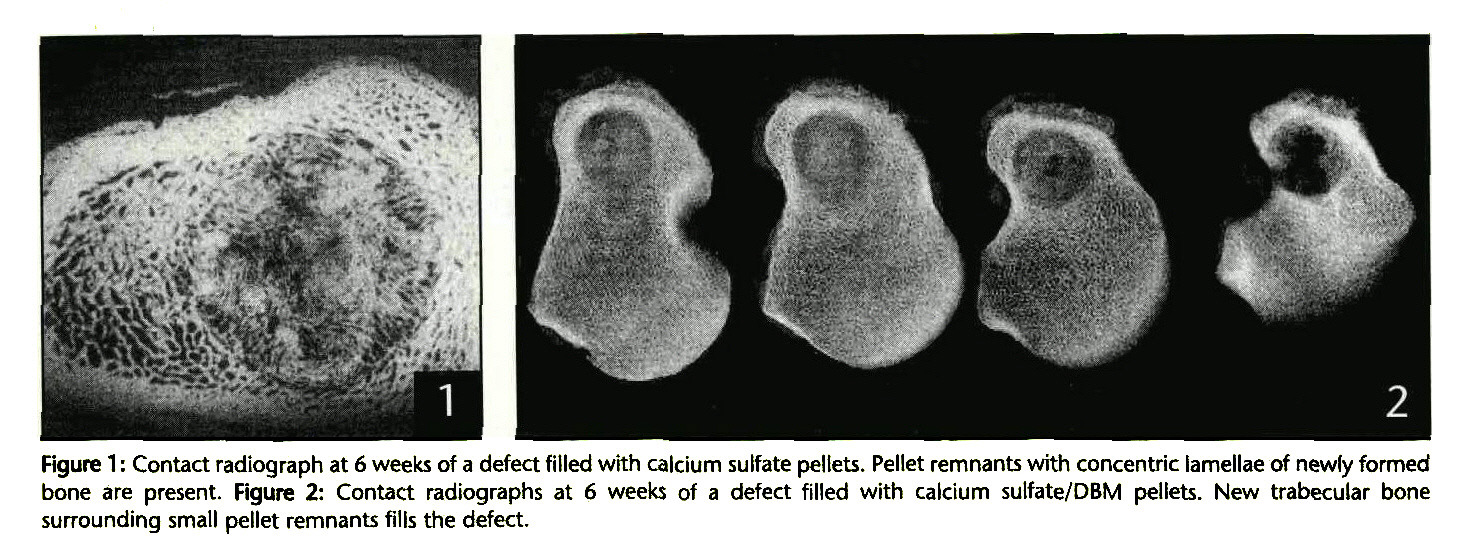Figure 1 : Contact radiograph at 6 weeks of a defect filled with calcium sulfate pellets. Pellet remnants with concentric lamellae of newly formed bone are present. Figure 2: Contact radiographs at 6 weeks of a defect filled with calcium sulfate/DBM pellets. New trabecular bone surrounding small pellet remnants fills the defect.