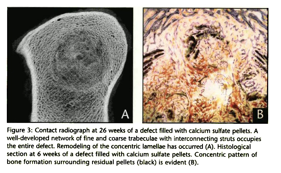 Figure 3: Contact radiograph at 26 weeks of a defect filled with calcium sulfate pellets. A well-developed network of fine and coarse trabeculae with interconnecting struts occupies the entire defect. Remodeling of the concentric lamellae has occurred (A). Histological section at 6 weeks of a defect filled with calcium sulfate pellets. Concentric pattern of bone formation surrounding residual pellets (black) is evident (B).