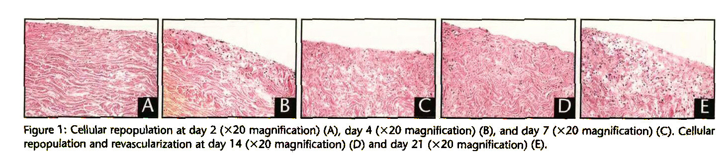 Figure 1: Cellular repopulation at day 2 (x20 magnification) (A), day 4 (x20 magnification) (8), and day 7 (x20 magnification) (Q. Cellular repopulation and revascularization at day 14 (X20 magnification) (D) and day 21 (x20 magnification) (E).