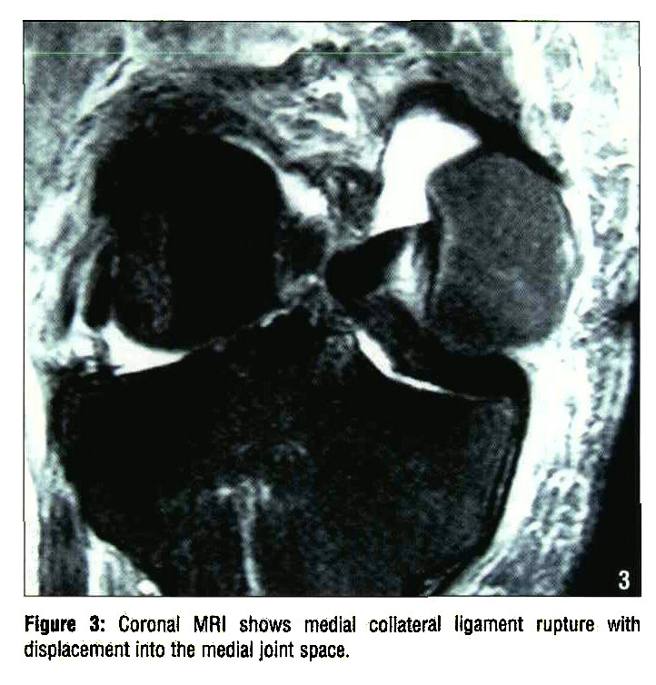 Figure 3: Coronal MRI shows medial collateral ligament rupture with displacement into the medial joint space.