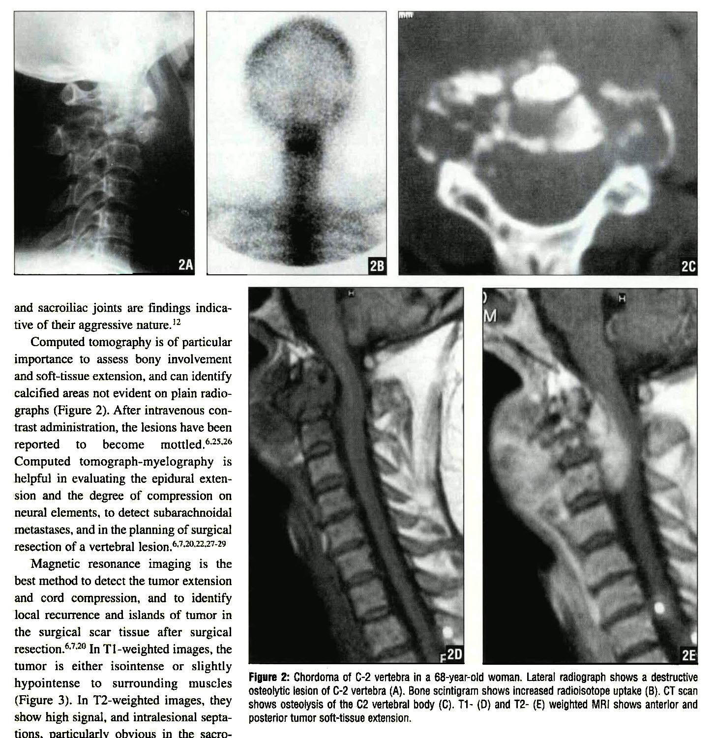 Figure 2: Ghordoma of C-2 vertebra in a 68-year-old woman. Lateral radiograph shows a destructive osteotytic lesion of C-2 vertebra (A). Bone scintigram shows increased radioisotope uptake (B). CT scan shows osteotysis of the C2 vertebral body (C). T1- (O) and T2- (C) weighted MRI shows anterior and posterior tumor soft-tissue extension.