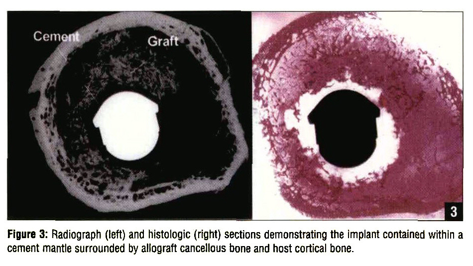 Figure 3: Radiograph (left) and histologic (right) sections demonstrating the Implant contained within a cement mantle surrounded by allograft cancellous bone and host cortical bone.
