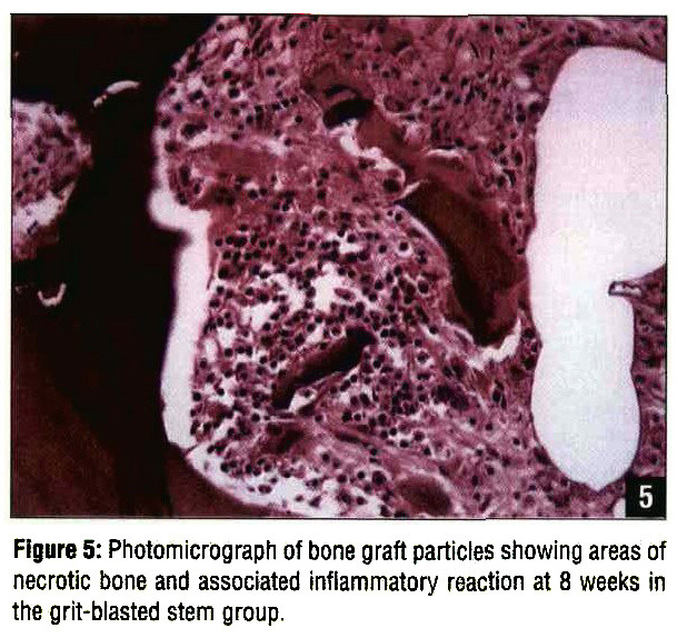 Figure 5: Photomicrograph of bone graft particles showing areas of necrotic bone and associated inflammatory reaction at 8 weeks in the grit-blasted stem group.