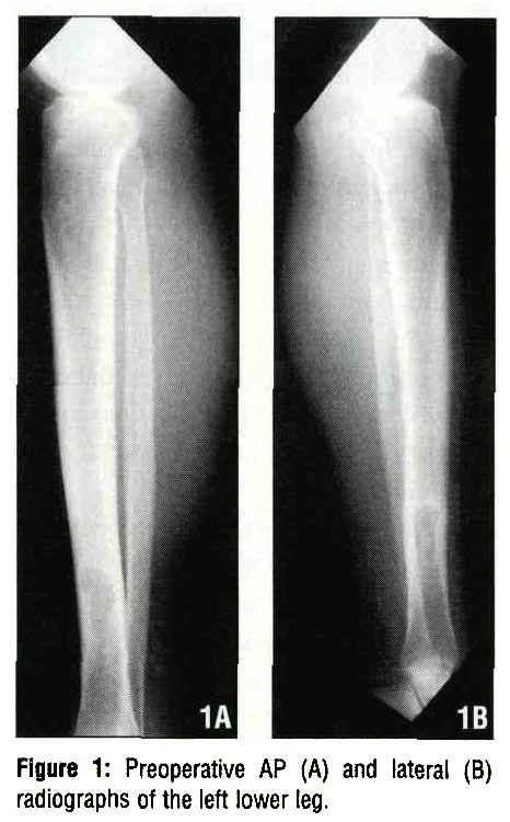 Figure 1: Preoperative AP (A) and lateral (B) radiographs of the left lower leg.