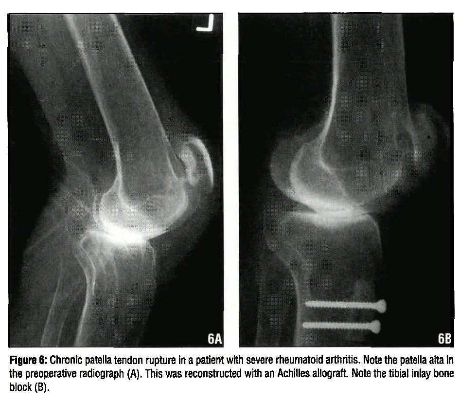 Surgical Treatment Options For Patella Tendon Rupture Part Ii Chronic
