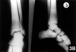 """Figure 3B: Radiograph of a 28-year-old woman with """"endobones"""" in tarsal bones"""