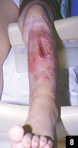 Figure 8: The clinical appearance of the recurrent osteomyelitis