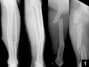 Figure 1: Plain radiographs showing the left tibial shaft and right segmental femoral shaft fractures
