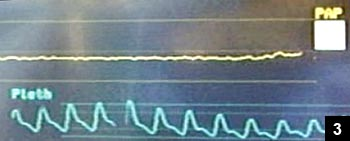 Figure 3: Obliteration of direct intraosseous pressure monitor waveform (superior waveform) within the femoral head
