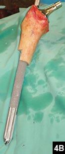 Figure 4B: Press-fit stem