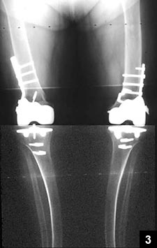 Figure 3: Alignment achieved by supracondylar osteotomies done at the same time as the TKRs