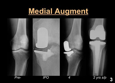 Figure 3: Use of medial tibial augments and stems