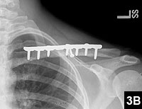 Figure 3B: Six-month postoperative radiograph