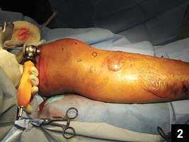 Figure 2: The trocar placed through the incision
