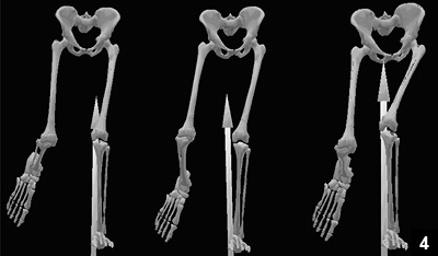 Figure 4: Computer generated skeletal model of an adult female