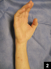 Figure 2: Healed puncture wounds