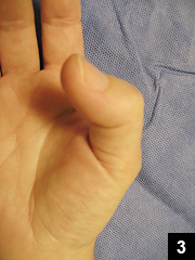Figure 3: The right trigger thumb
