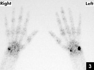 Figure 3: Technetium-99m planar bone scan performed