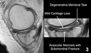 Figure 3: MRI of the medial hemijoint of a knee