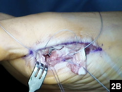 Figure 2B: Intraoperative photograph obtained during reattachment