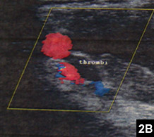 Figure 2B: A thrombus extending from the brachial axillary veins