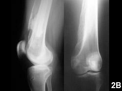 Figure 2B: Neurogenic heterotopic ossification of the left hip joint