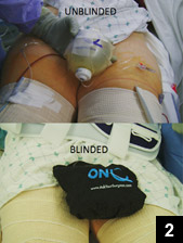 Figure 2: Blinded and unblinded pain control infusion pump placement