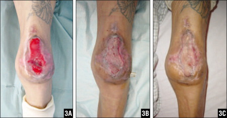 Formation of Granulation Tissue on the Exposed Joint After 20 Days of Negative Pressure Wound Therapy (A). Split-Thickness Skin Grafts Were Applied After 21 Days of Therapy (B). Wound After 70 Days of Therapy. The Skin Was Completely Healed Without Evidence of Recurrent Ulcerations (C).