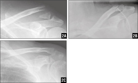 Images Showing a Neer Type II Distal Clavicular Fracture Before (A) and After (B) Single Coracoclavicular Fixation with Mersilene Tape, with Bony Union After Surgery (C).