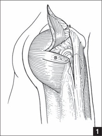 The upper third of the gluteus maximus muscle is elevated as the anterior flap (A). The posterior flap is demarcated (B).