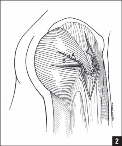 The repair is done in 15° abduction. The anterior flap (A) is sutured into a trough in the greater trochanter and sutured under the vastus lateralis. The posterior flap (B) is passed over the femoral neck and sutured into the anterior capsule and greater trochanter. The lower half of the gluteus maximus and fascia lata are closed tightly over these flaps.