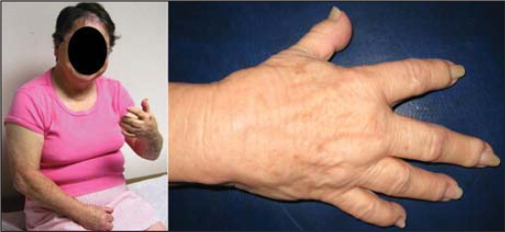 Physical examination was remarkable for physical features characteristic of PPH including round face and brachydactyly.