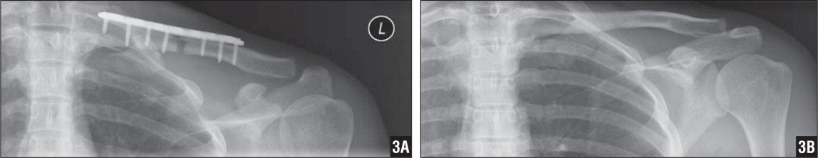 Clavicle Fracture With Thoracic Penetration And Hemopneumothorax But Without -2923