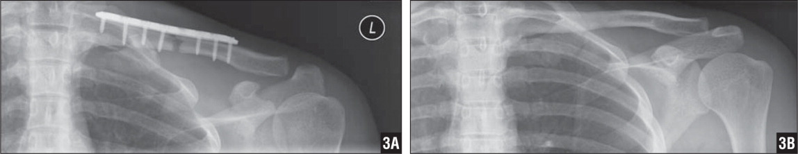 AP radiographs of the left clavicle after initial fixation (A) and at final follow-up after subsequent hardware removal (B).
