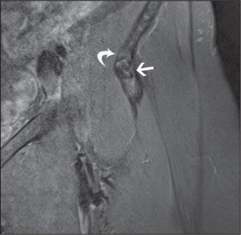 Proton Density-Weighted, Fat-Suppressed Coronal Image of the Left Hip Showing a Hypointense Calcific Focus (straight Arrow) Extending into the Anterior Inferior Iliac Spine (curved Arrow).