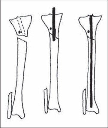 To correct valgus deformity, a blocking screw is placed just lateral to the central axis of the tibia, as shown in this AP diagram. As the nail is passed medial to the blocking screw, reduction is achieved.