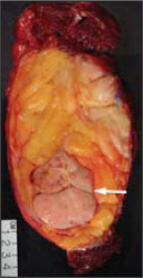 Gross image demonstrates a biphasic neoplasm composed of large, multinodular yellow mass with a large solid, nonlipomatous component. The dedifferentiated component (arrow) may have a variable histological grade. Most often they resemble a malignant fibrous histiocytoma or fibrosarcoma.
