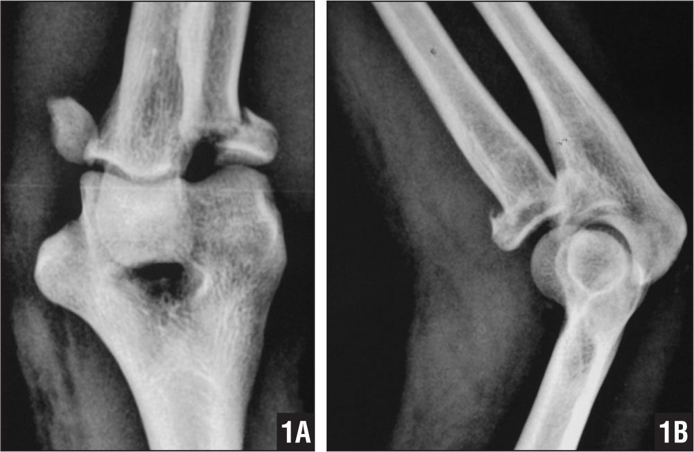 Patient 1. Anteroposterior (A) and lateral (B) radiographs of the fracture.