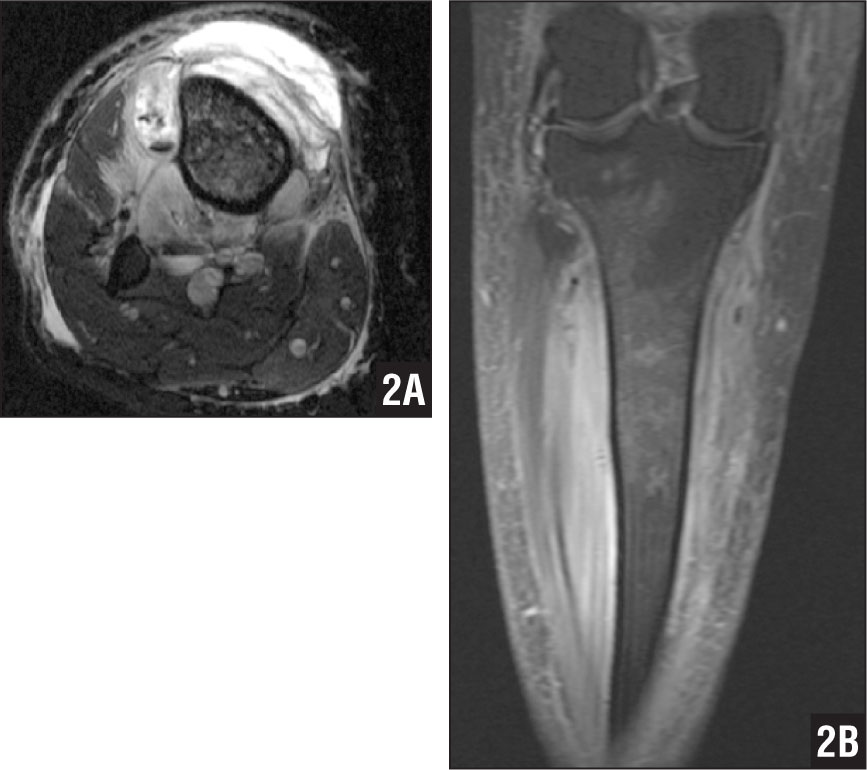 Axial T2-weighted magnetic resonance image of the right tibia with worsening symptoms 4 days after initial admission (A). T1-weighted coronal magnetic resonance image showing worsening symptoms 4 days after initial admission (B).