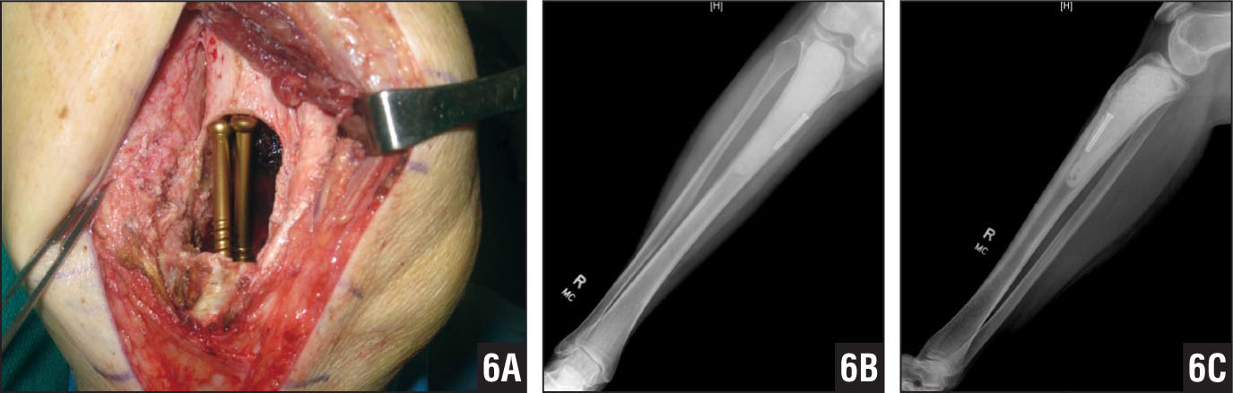 Reconstruction of proximal tibia images showing the successful use of titanium screws as support struts. Surgical image at time of screw placement (A). Anteroposterior (B) and lateral (C) radiographs 6 months after final surgery demonstrating the reconstruction of the proximal tibia with polymethylmethacrylate cement insertion into the defect created after debridement (B).