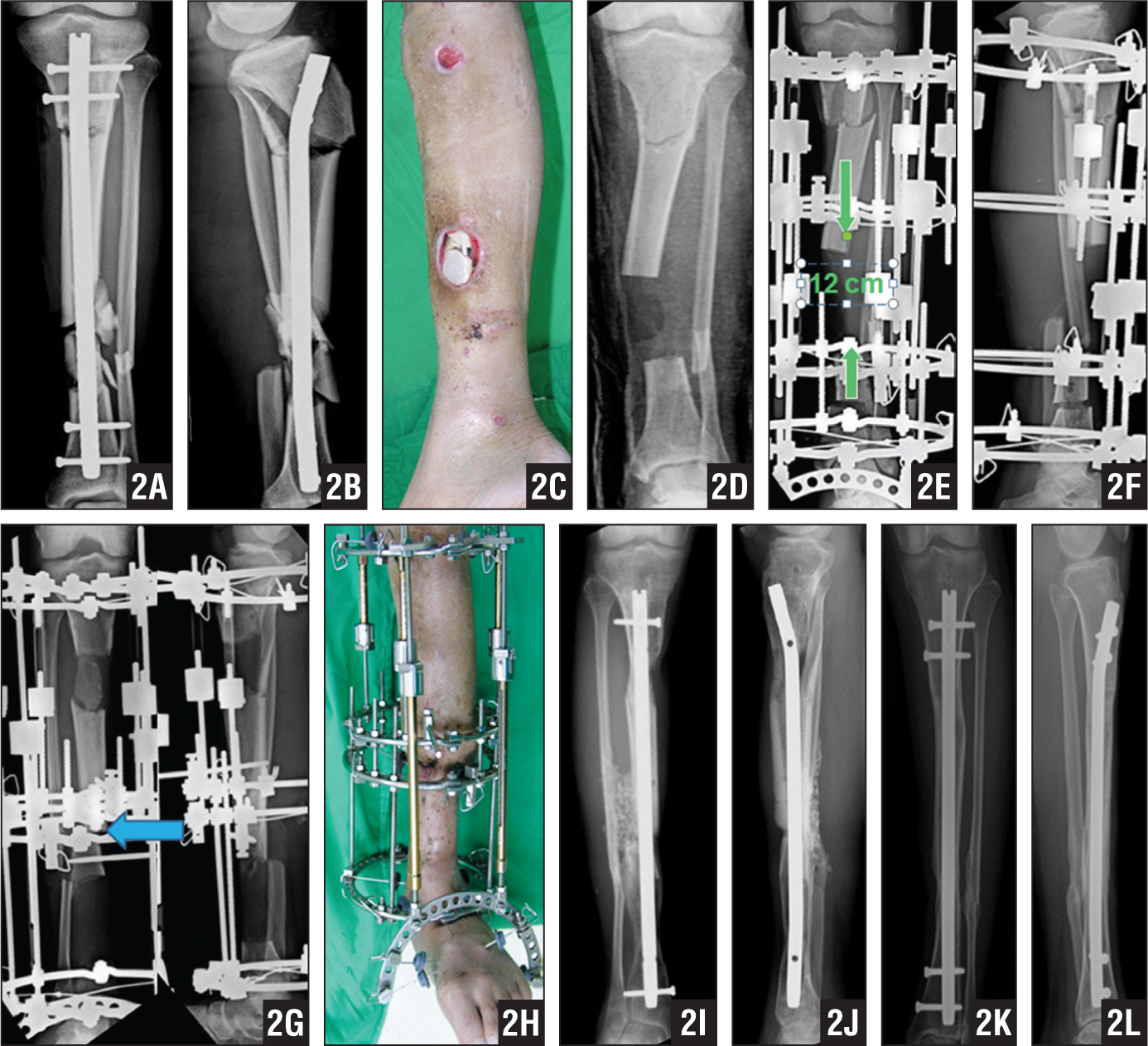 The patient sustained an open segmental tibial shaft fracture with infection and had been treated with intramedullary locked nail at another institution approximately 3 months before presentation. The staged protocol of the clinic was applied. Anteroposterior (A) and lateral (B) radiographs and photograph (C) showing the condition on arriving. Anteroposterior radiograph showing postoperative status after radical debridement, removal of locked nails, sequestrectomy, and residual 12 cm of bone defect (D). Anteroposterior (E) and lateral (F) radiographs showing that bone transport was performed with a trifocal-approach. Anteroposterior (left) and lateral (right) radiographs showing visible callus (G). Photograph taken on arrival at the docking site showing Ilizarov's apparatus with an extended fixator for forefoot anchorage (H). Anteroposterior (I) and lateral (J) radiographs obtained after removing the external skeletal fixator showing intramedullary locked nail and bone consolidation after Harmon's procedure. Anteroposterior (K) and lateral (L) radiographs showing bony union at 1-year follow-up.