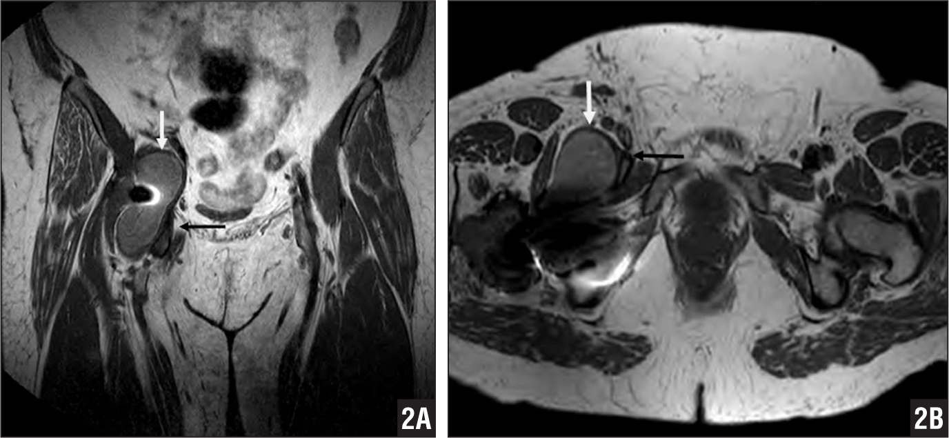 Coronal (A) and axial (B) T1-weighted metal artifact reduction sequence magnetic resonance images showing the iliopsoas bursal cyst (white arrow) displacing and compressing the common femoral vein (black arrow).