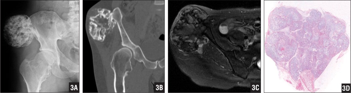 Radiograph (A), computed tomography scan (B), and T2-weighted magnetic resonance image (C) showing a secondary peripheral chondrosarcoma at the iliac wing of a patient with hereditary multiple exostoses. Photomicrograph showing a cartilaginous cap >2 cm in maximum thickness. The cap has a lobular architecture with clustered chondrocytes at the periphery of the lobules; myxoid changes may be present (hematoxylin-eosin stain ×2) (D).