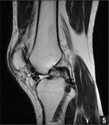 Postoperative sagittal magnetic resonance image showing the tibial tunnel.