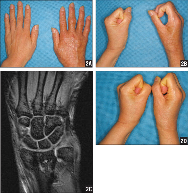 Anteroposterior (A) and lateral (B) photographs of a 57-year-old woman with a right proximal humerus fracture sustained in a slip and fall showing clinical characteristics. Magnetic resonance image showing patchy osteopenia (C). Lateral photograph taken 1 year after open reduction and internal fixation with a plate showing good clinical results (D).