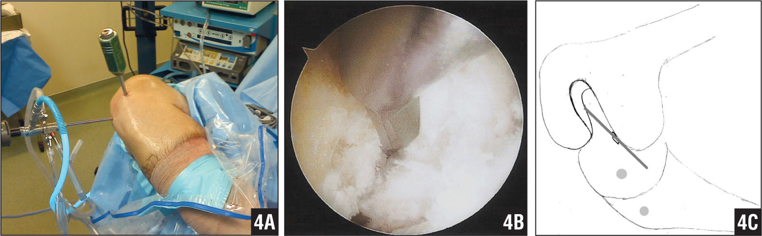 Photograph of the 7-mm offset guide placed through the anteromedial portal with the knee hyperflexed in the figure-4 position (A). Arthroscopic image of the 7-mm offset guide positioned at the femoral anterior cruciate ligament footprint (B). Diagram of the 7-mm offset guide positioned at the femoral anterior cruciate ligament footprint (C).