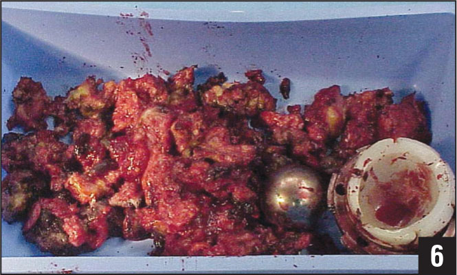Intraoperative photograph of the excised massive granuloma, removed femoral head, and severely worn acetabular liner.