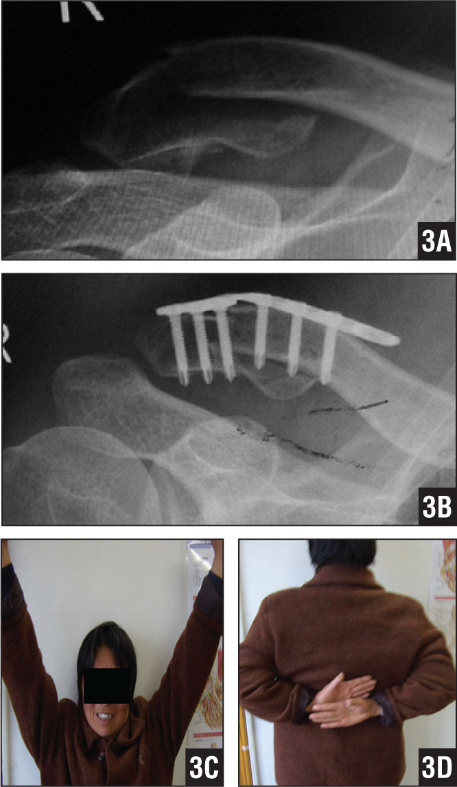 Anteroposterior radiograph of the right shoulder of a 48-year-old woman who sustained a displaced Neer type II distal clavicle fracture (A). Anteroposterior radiograph of Internal fixation using an AO distal radius volar locking T-plate (B). Photographs showing excellent clinical results (C, D).
